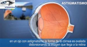 operar astigmatismo en Sevilla
