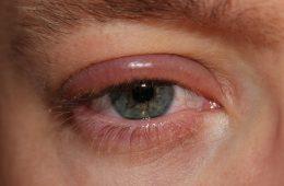 blefaritis-inflamacion-del-parpado